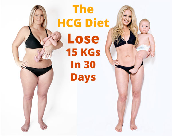 hcg weight loss injections south africa