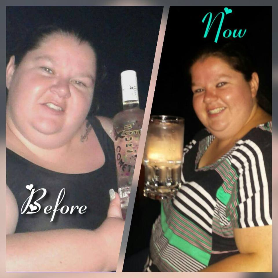 hcg weight loss progress pictures