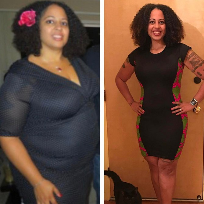 Will i lose weight when my gallbladder is removed photo 7